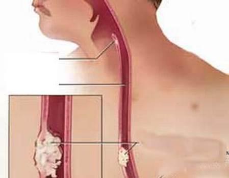 سرطان مری علت، علائم و درمان با جراحی برداشتن مری (ازوفاژکتومی) و لاپاراسکوپی