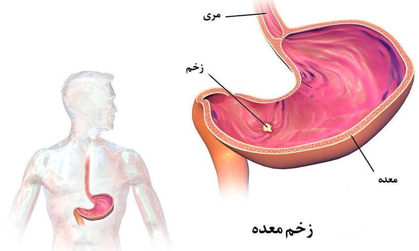 زخم معده و درمان با جراحی، علت، علائم و نشانهها