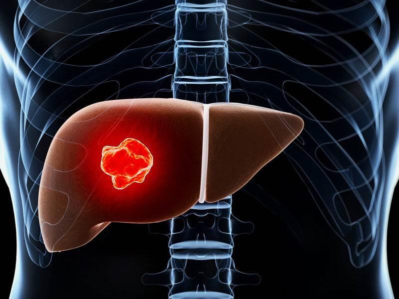 سرطان کبد علت، علائم و درمان با جراحی باز و لاپاراسکوپی