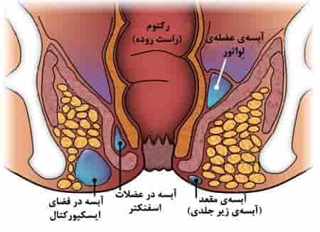فیستول یا آبسه مقعد علائم و نشانهها و درمان با جراحی